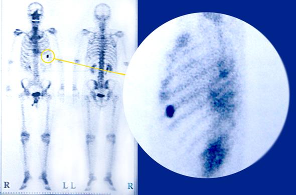 7月22日の骨シンチ画像(イメージ)
